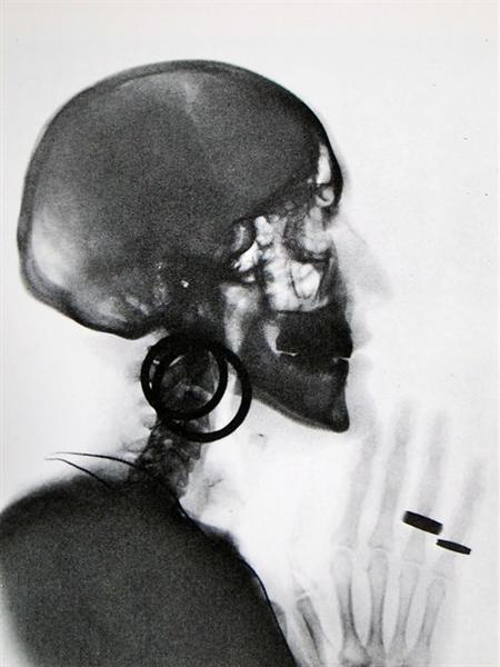 X-Ray of M.O.'s Skull, 1964 - Мерет Оппенгейм